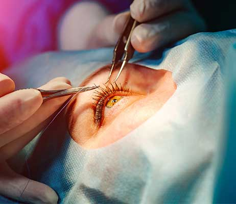 lasik-eye-surgery-dr-brunell-462w